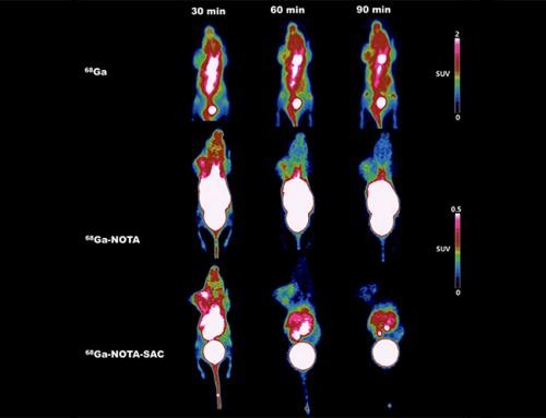암 검출용 사카린 기반 소재 개발